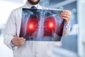 缓慢肺部疾病不容小觑特别是这四种需警觉肺癌找上自己