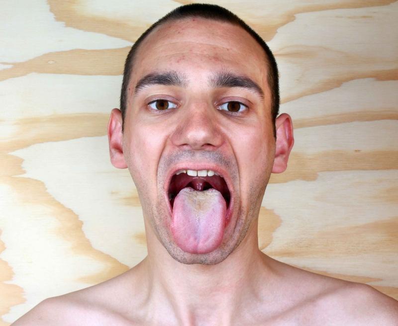 舌头发麻是怎么回事舌头发麻有哪些治疗方法